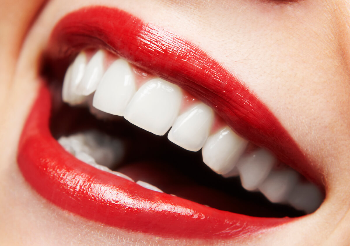 Are You Looking For A Zoom Teeth Whitening in Redmond, WA Area ?