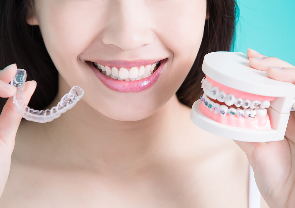 Patients in Redmond, WA Area Considering Braces or Invisalign Clear Braces Are Seeking Answers From Nearby Dentists!