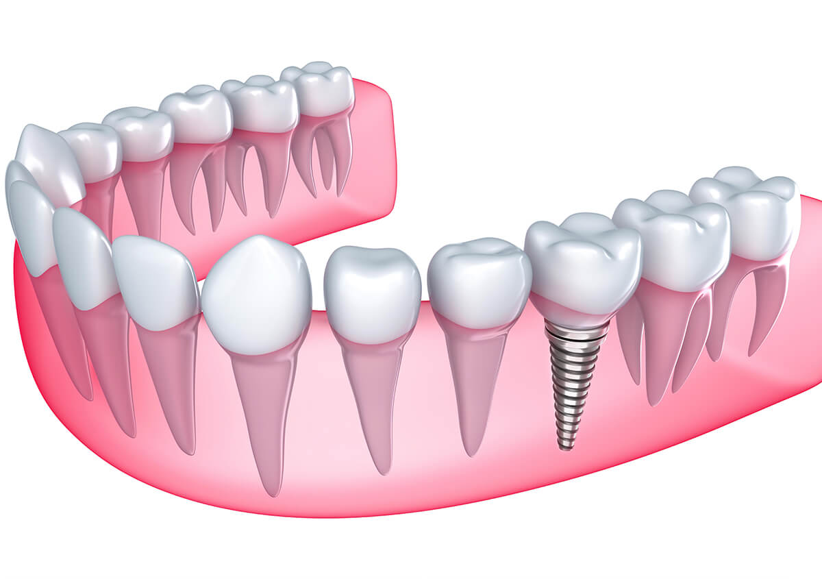 Implants for Teeth at Smile Studios in Redmond Area